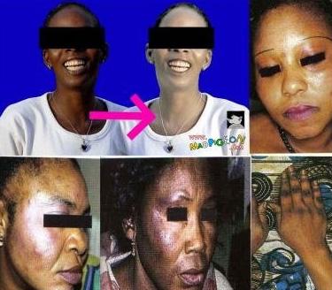 Changer de couleur de peau : Les dangers des crèmes blanchissantes