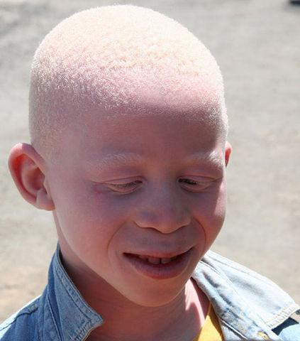 Journée de sensibilisation à l'albinisme : Ban Ki-moon appelle les pays à mettre fin à la discrimination