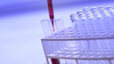 Santé : 1.34 millions de décès dans le monde sont causés par l'hépatite