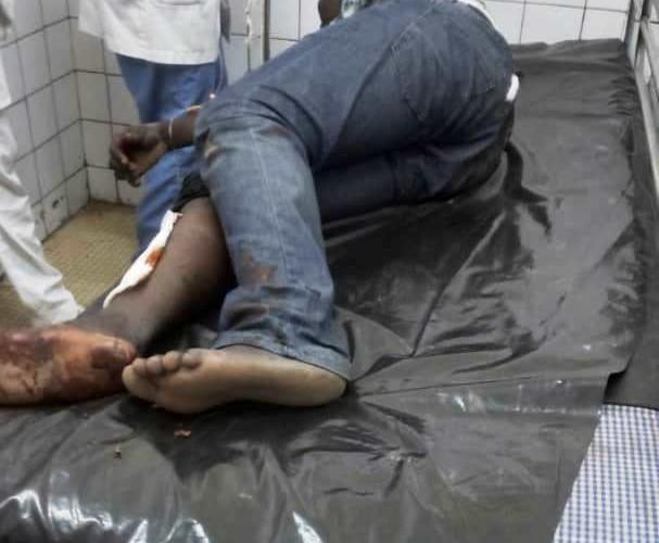 Faits divers : le président de l'Union nationale des étudiants tchadiens blessé au cours d'une bagarre