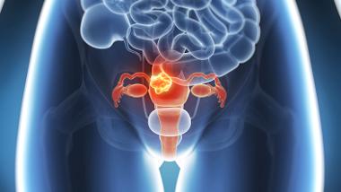 Cancer du col de l'utérus : les chiffres sont alarmants