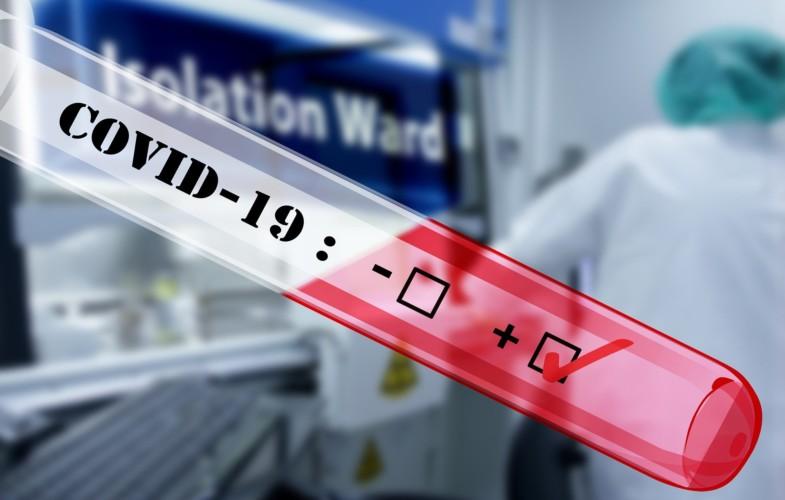 Coronavirus : le Tchad annonce son 1er cas de malade infecté localement