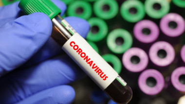 Coronavirus: après N'Djamena, le Kanem est la deuxième province la plus touchée