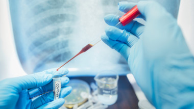 Coronavirus : le Tchad dépasse la barre de 600 cas