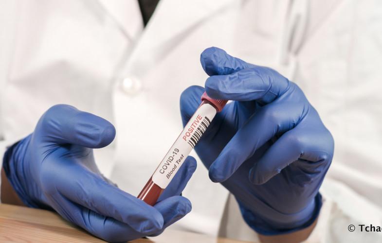 Coronavirus : 00 cas confirmé, 00 guéri, 00 décès