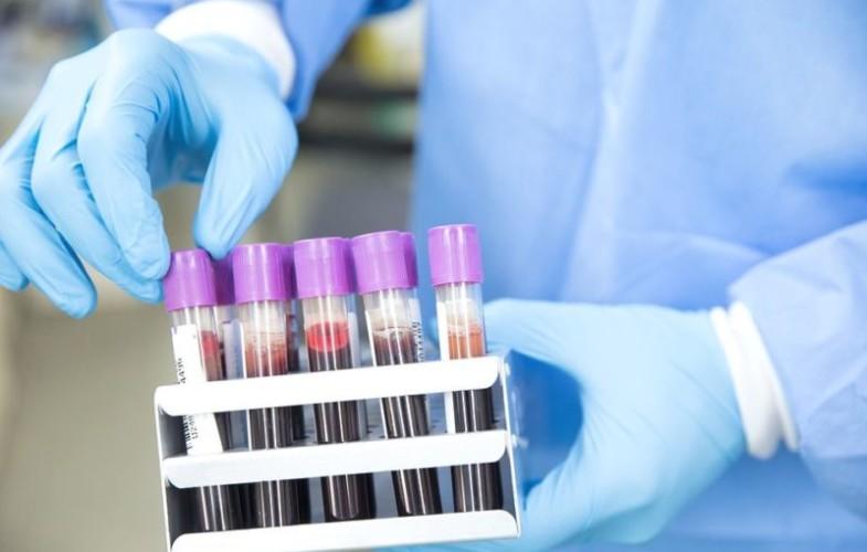 Coronavirus : 00 cas confirmé, 00 guéri et 00 décès