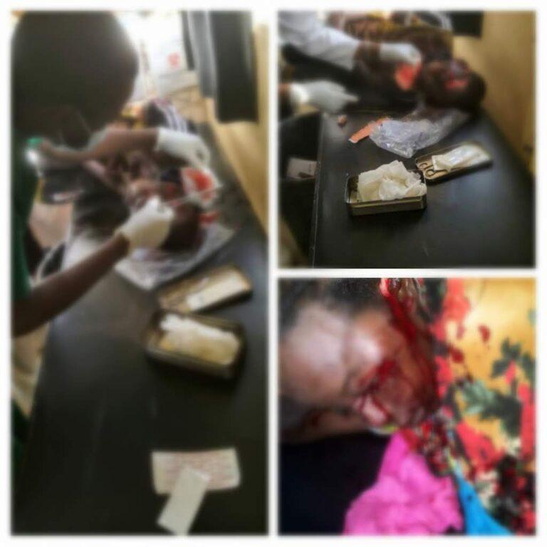 Tchad/Faits divers : les victimes de l'agression de la panthère sont toujours à l'hôpital