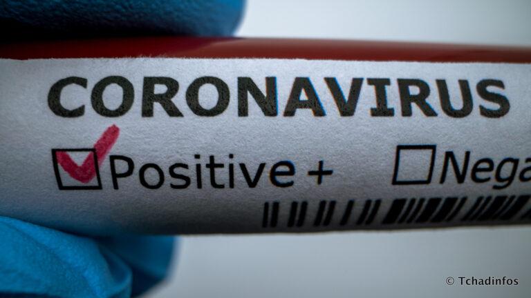 Coronavirus : 11 nouveaux cas confirmés, 54 guérisons et 1 décès